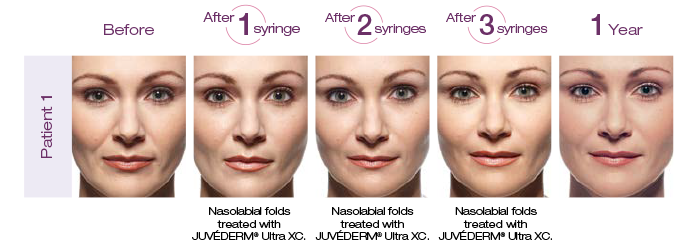 Juvederm Patient Before and After
